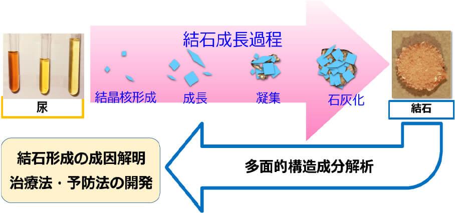 路 予防 尿 結石